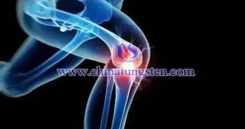 二硫化鉬塗層在關節疼痛治療中的應用圖片