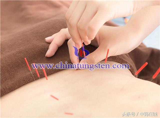 火针疗法图片